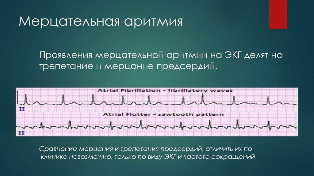Миготлива аритмія серця