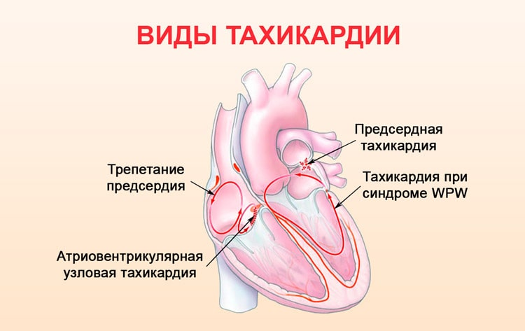 види тахікардії