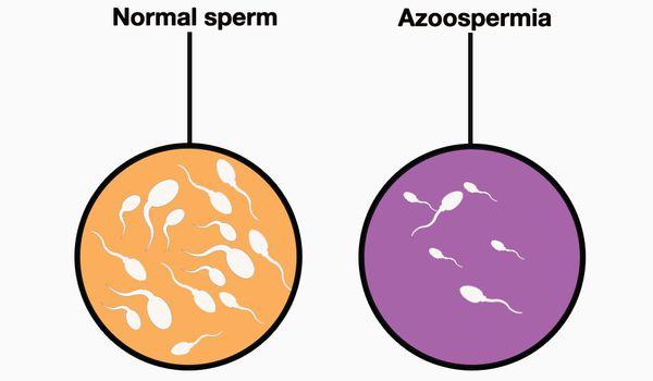 Азооспермія