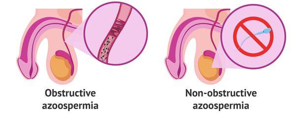 азооспермія типи