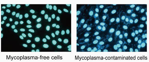 Мікоплазмоз