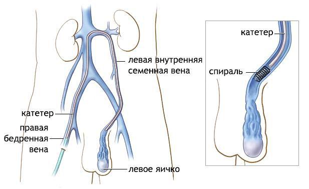варикоцеле операція