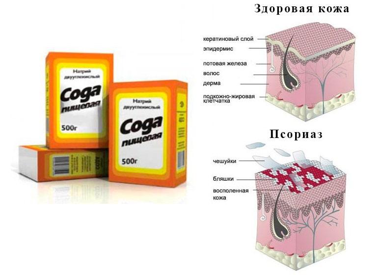 сода проти псоріазу рецепти