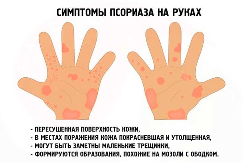 псоріаз на руках