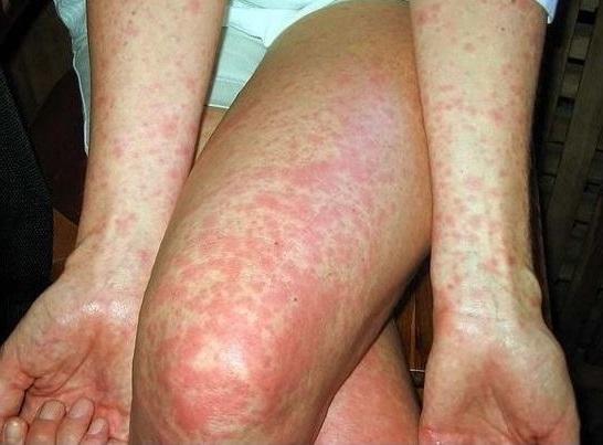 черевний тиф симптоми фото