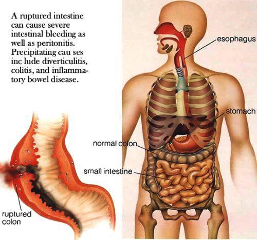перфорація кишечника