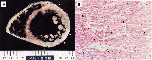 Патогенез міокардіодистрофії