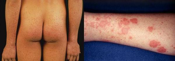 гепатит в симптоми фото