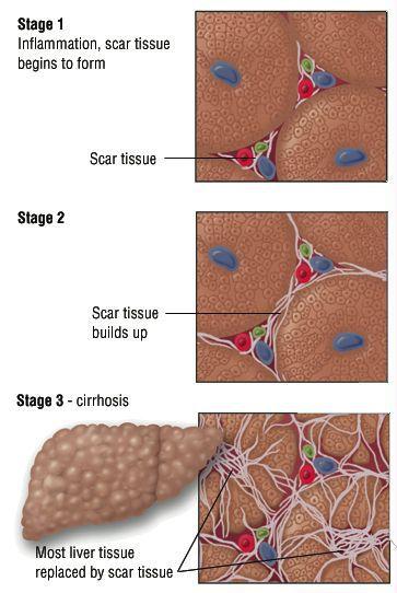 гепатит в стадії