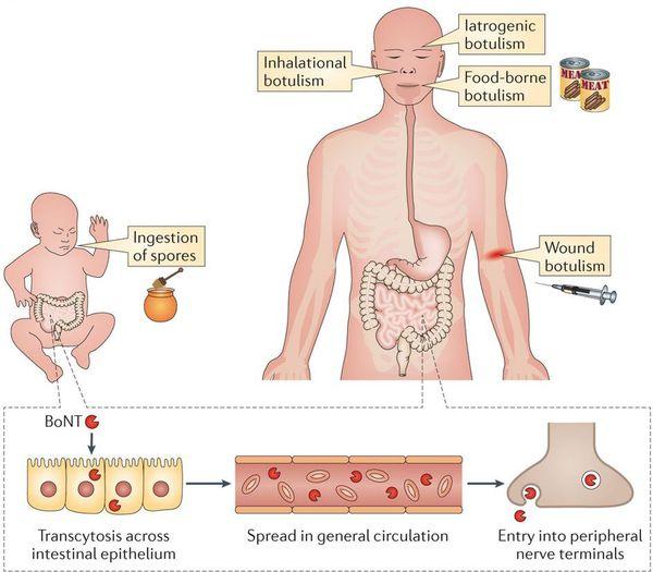 патогенез ботулізму