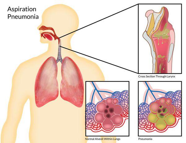аспіраційна пневмонія