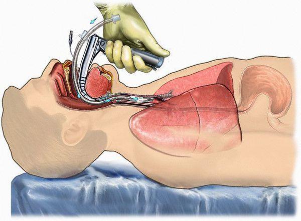 лікування ботулізму