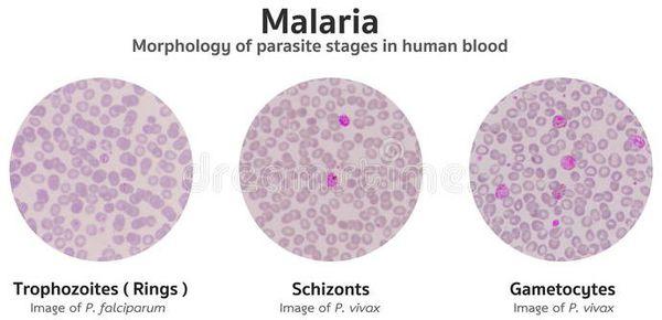 малярія за ступенем тяжкості