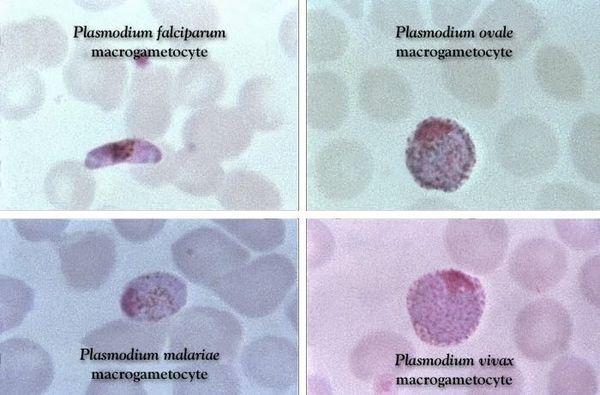 діагностика малярії