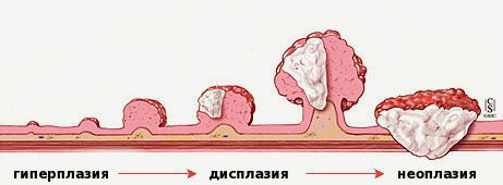 Патогенез поліпа прямої кишки