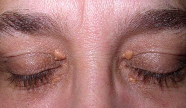 дисліпідемія симптоми фото