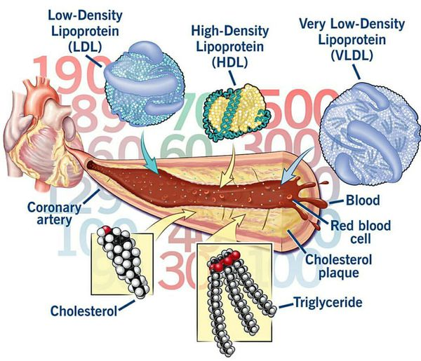 дисліпідемія патогенез