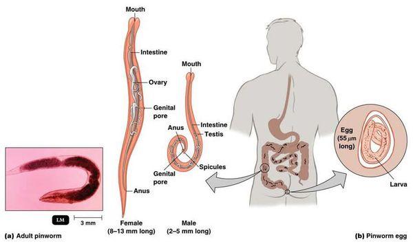 аскаридоз симптоми