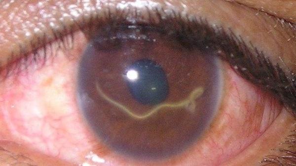 токсокари у людини в очах фото