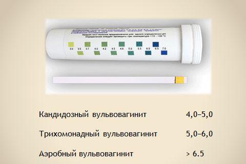 вульвовагініт діагностика
