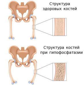 гіпофосфатазія