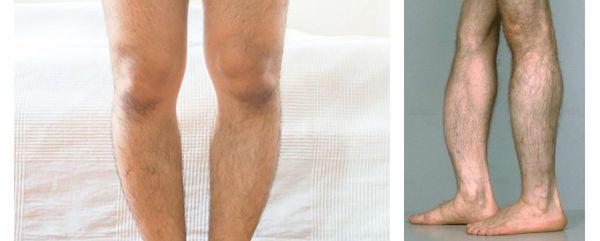 гіпофосфатазія ніг