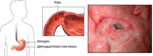 виразкова хвороба дванадцятипалої кишки