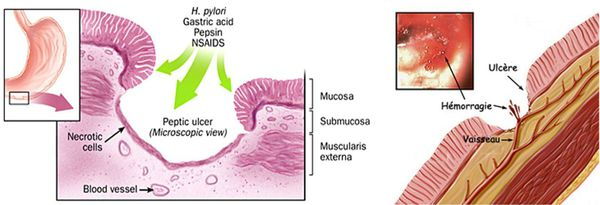 виразкова хвороба 12 палої кишки