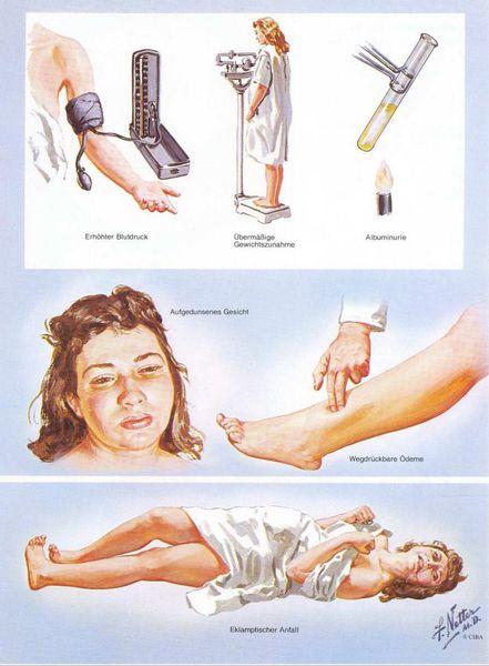 прееклампсія вагітних