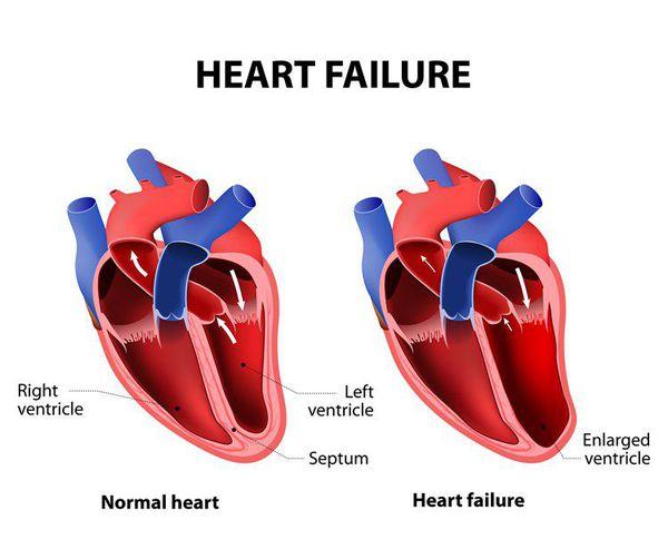 Патогенез серцевої недостатност