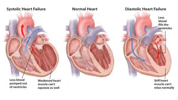 Хронічна серцева недостатність з порушенням