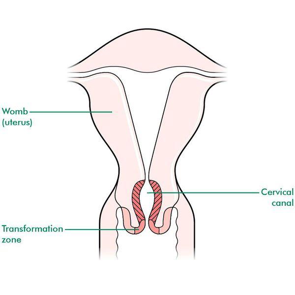 лейкоплакія шийки матки діагностика