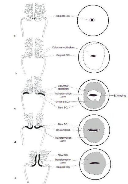 лейкоплакія шийки матки