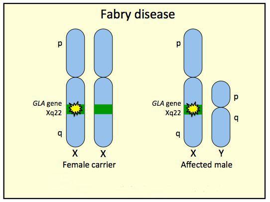 Патогенез хвороби Фабрі