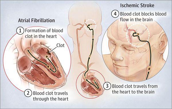симптоми миготливої аритмії