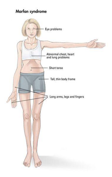 синдром марфана симптоми