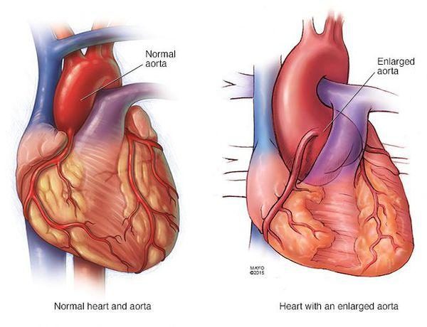 синдром марфана серце