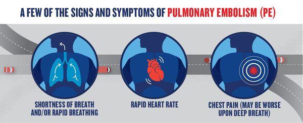 симптоми тромбоемболії легеневої артерії