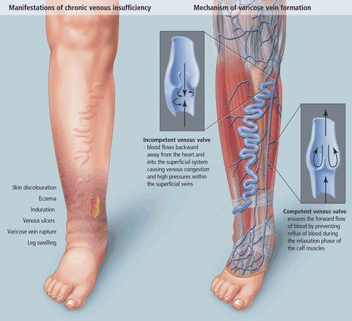 патогенез хронічної венозної недостатності