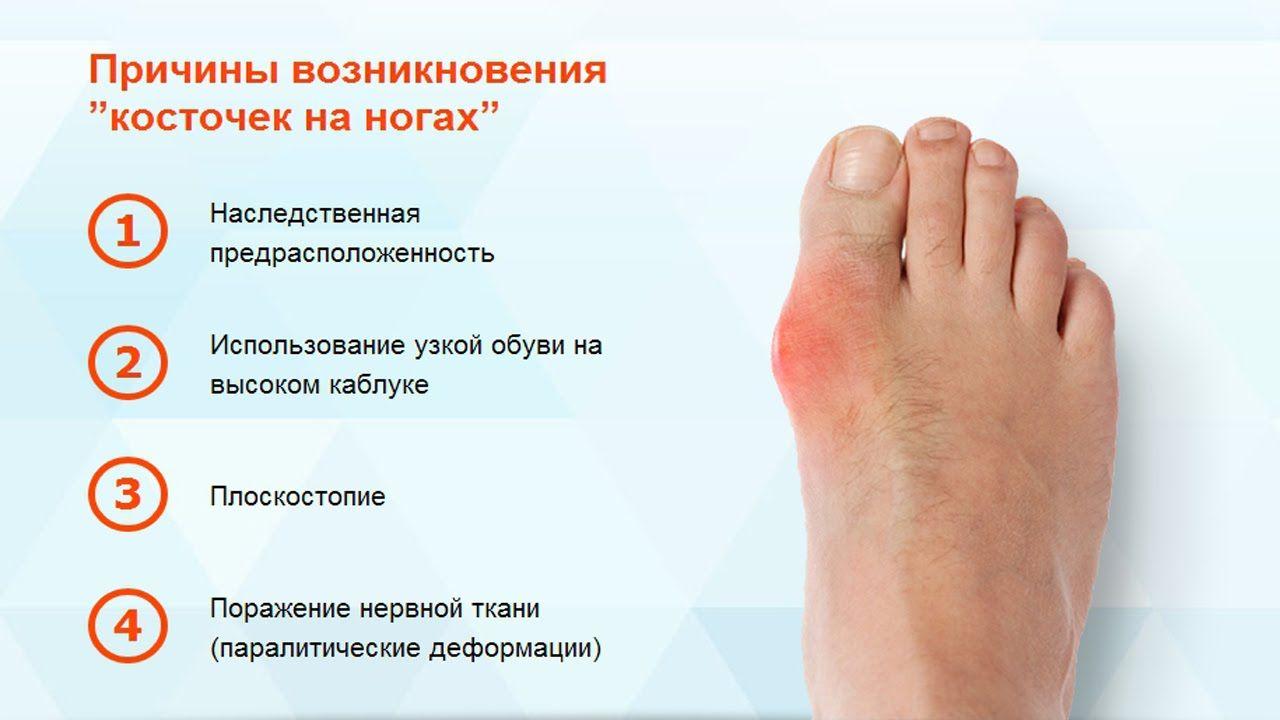 шишка на нозі причини