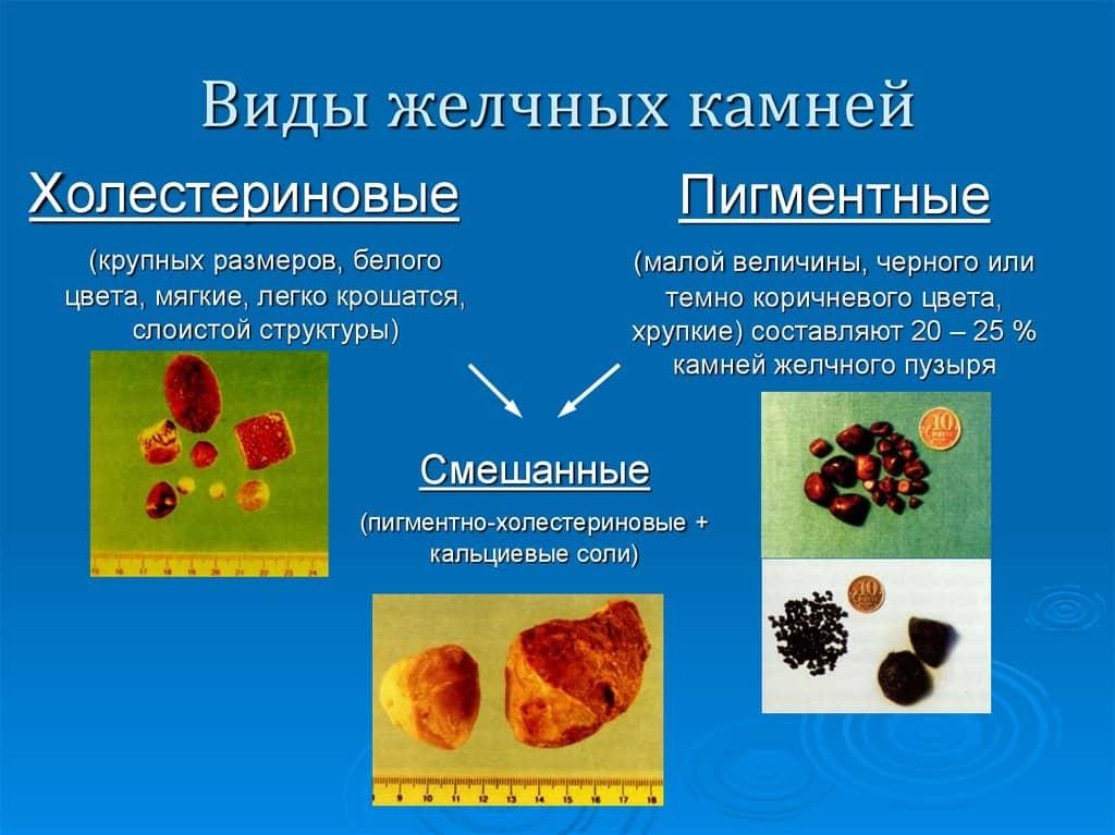 камінь жовчного міхура види