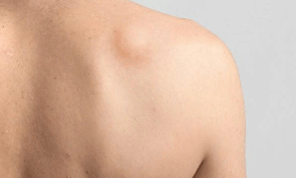 шишки під шкірою