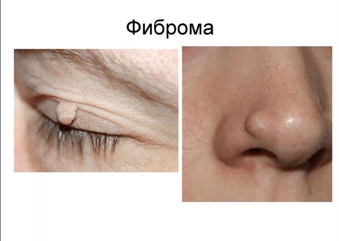 фіброма на носі