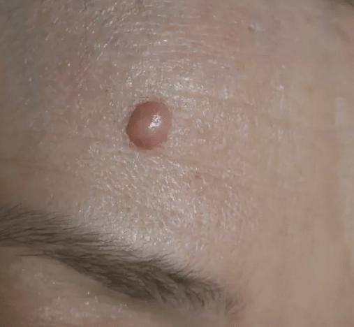 вузлик під шкірою на чолі фото