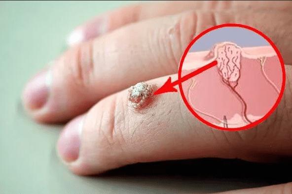 затвердіння під шкірою на пальці