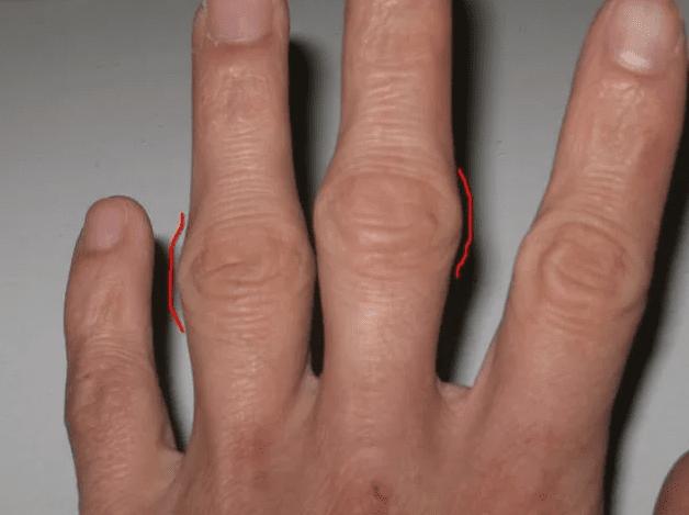 гігрома на суглобі пальців фото