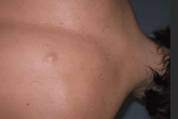 гулька на спині фото