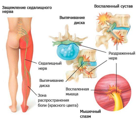 защемлення сідничного нерва симптоми