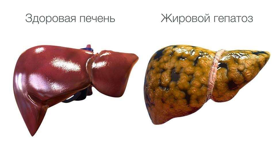 Як лікувати гепатоз печінки народними засобами народними методами