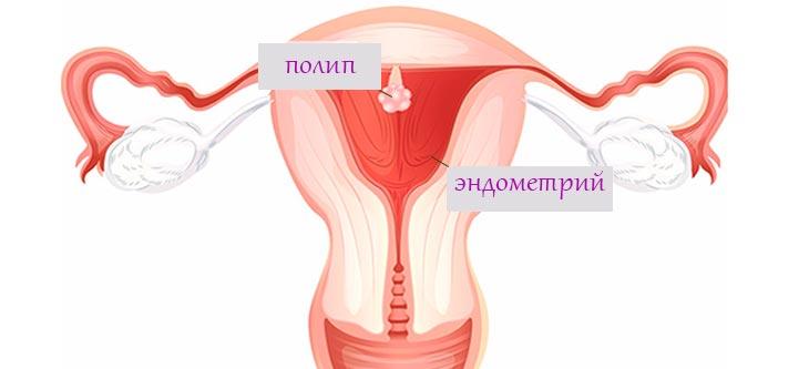 поліп ендометрію